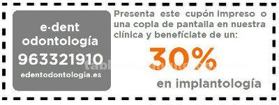 30% de descuento web en implantes dentales
