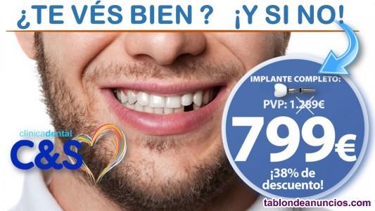 Implante dental unitario completo 799€