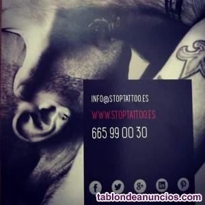 Eliminación de tatuajes, micropigmentacion y manchas cutaneas