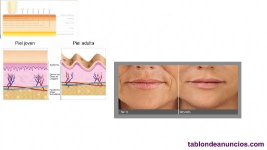 Tratamiento facial, código barras, acne, manchas