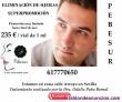 Fotos del anuncio: Eliminación de ojeras al mejor precio de sevilla